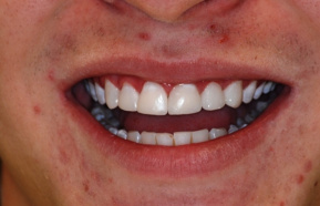 Reconstruction of frontal teeth with composite material (composite veneers)