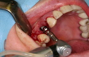 Implantation of tooth implant step by step