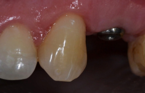 Crown abutment implant