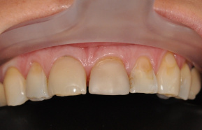 Reconstruction of frontal teeth 2