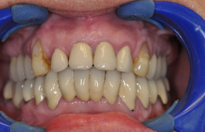 Reconstruction of frontal teeth with all-ceramic crowns