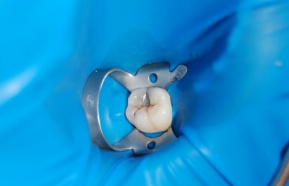 Tooth decay under the old amalgam filling