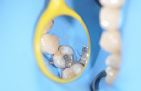 Decay under amalgam filling and replacement with a new white filling