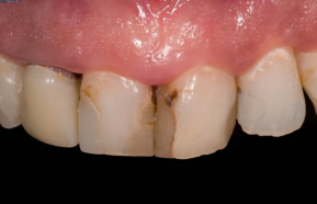 Reconstruction of the front teeth with all-ceramic crowns