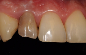 Dead tooth replaced with ceramic crown