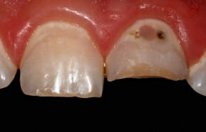 Repairing a broken front tooth with decay