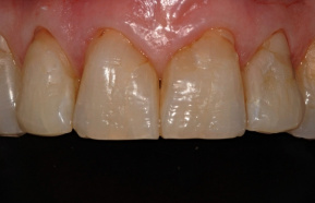 Composite completion teeth