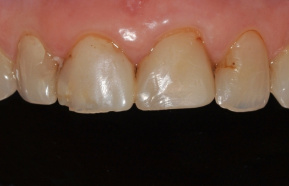 Reconstruction of the smile with all-ceramic Emax veneers