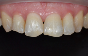 Completion of the front teeth with composite material