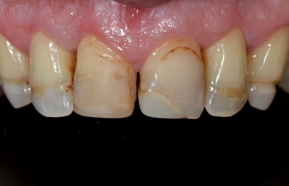 Reconstruction of teeth with crowns and composite restorations