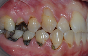 Treatment 15 and Emax crown and composite fillings