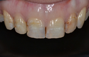 Photocomposit comletation of teeth after orthodontic treatment