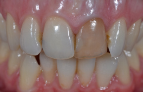 Internal teeth whitening and subsequent rebuilding photocomposite fillings in the queue