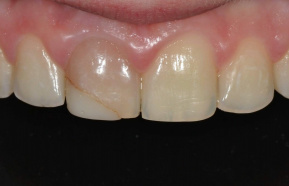 Internal teeth whitening followed by photocomposite rebuilding