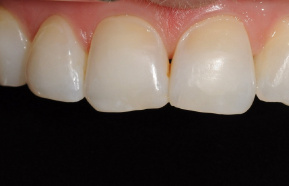 Completion of the front teeth