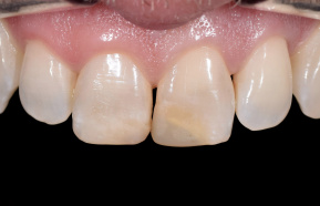 Make over of frontal teeth
