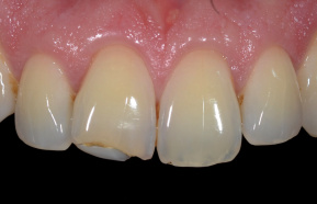 Composite tooth completion