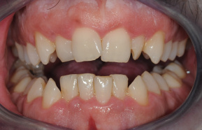Orthodontic treatment followed by aesthetic completion of the teeth