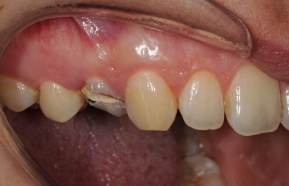 Caries removal process