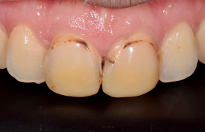 Photocomposite completion of the front incisors
