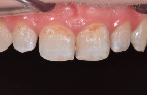 Completion of front teeth and incision adjustment