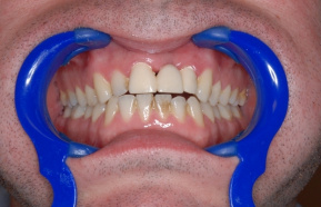 before the treatment at a dental hygienist - visible pigmentation