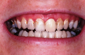before - cavities on frontal teeth and an old crown