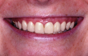 after - reconstruction of frontal teeth with full ceramic crowns