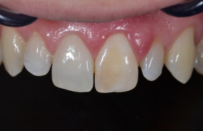 Second day of tooth bleaching