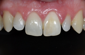 Third day of tooth bleaching