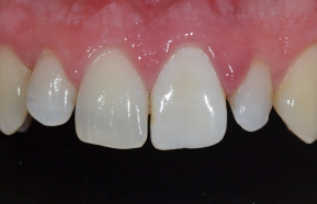 Fouth day of tooth bleaching