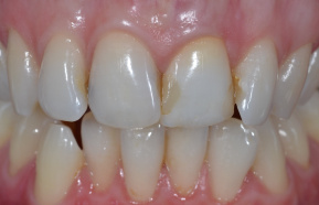After internal teeth whitening