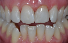 After photocomposite fillings