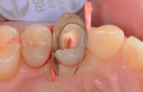 After drilling of temporary fillings and caries removal