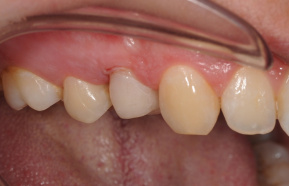 After endodontic treatment and completion of the tooth