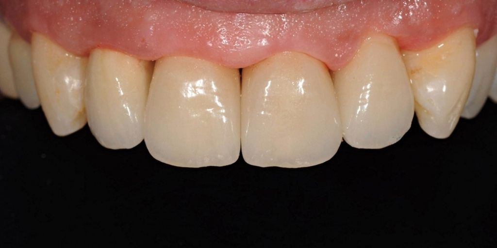Reconstruction of the front teeth with all-ceramic crowns ...